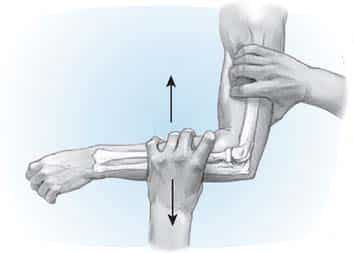 Posterior Drawer Test of the Elbow