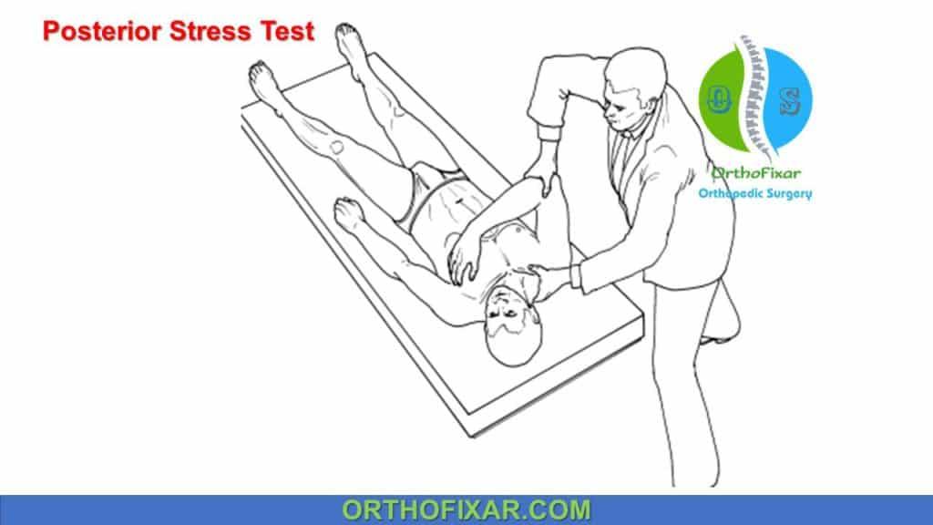 Posterior Stress Test