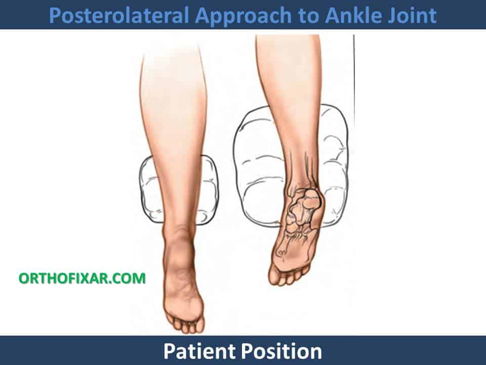 Posterolateral Approach to Ankle Joint