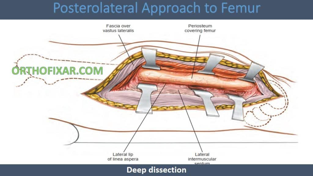 Posterolateral Approach to Femur