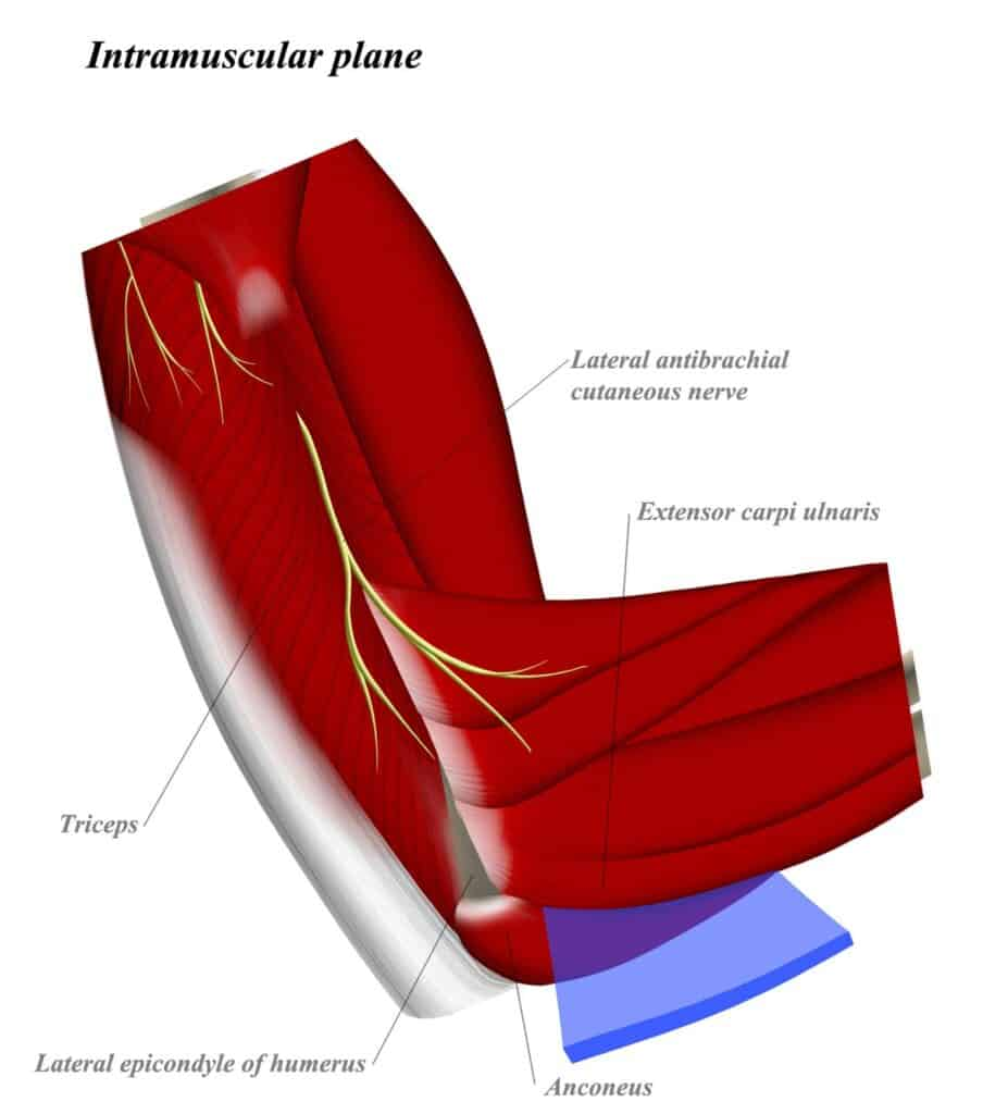 Posterolateral Approach to the Elbow