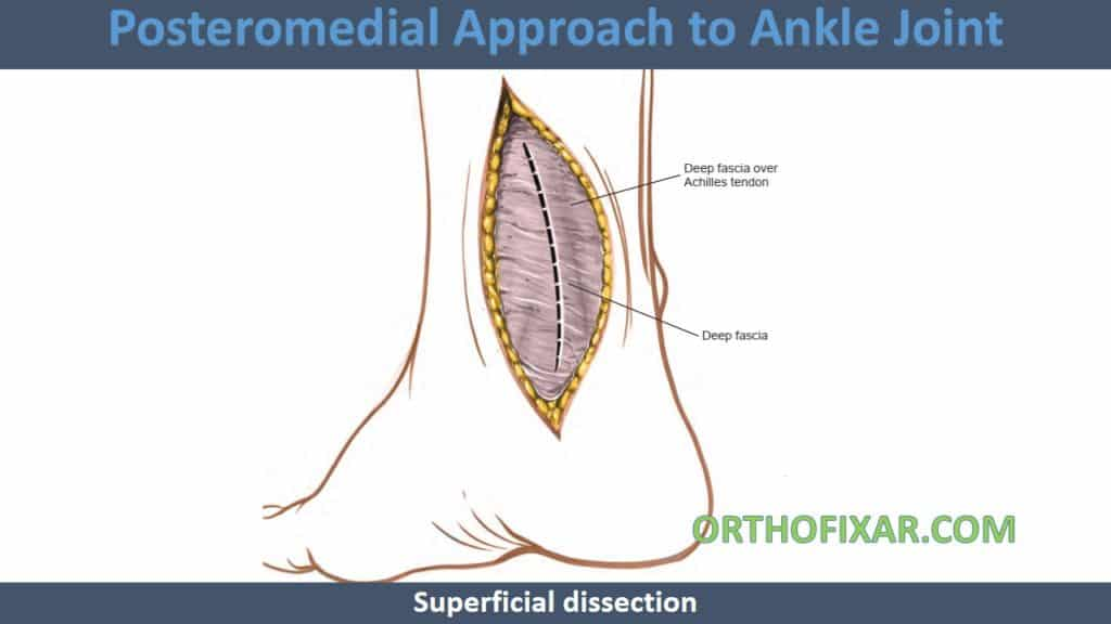 Posteromedial Approach to Ankle Joint