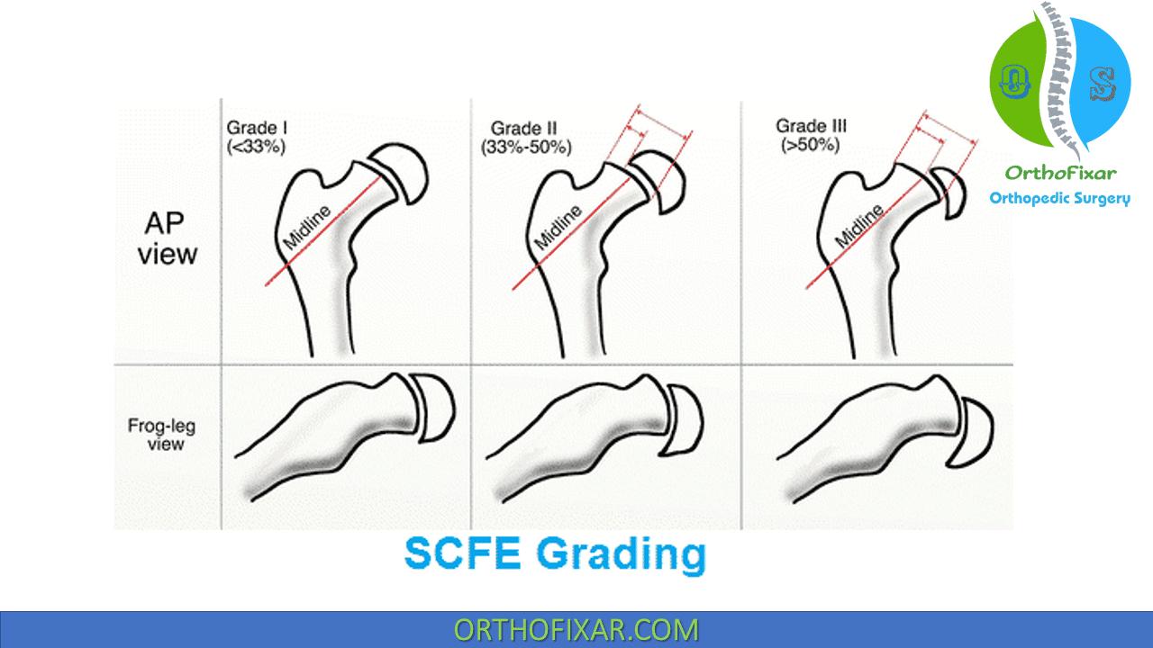 SCFE grading