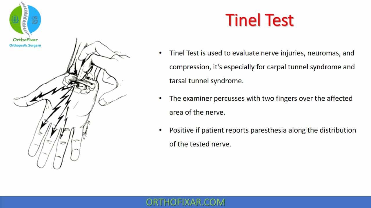 Tinel Test