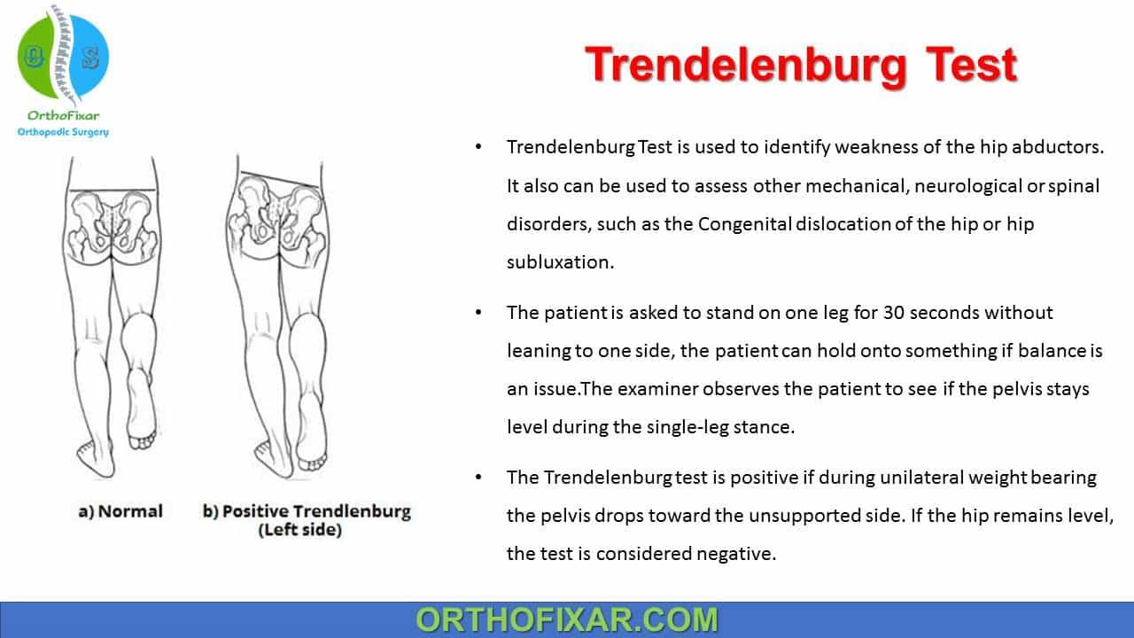 Trendelenburg Test