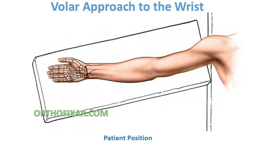 Volar Approach to the Wrist