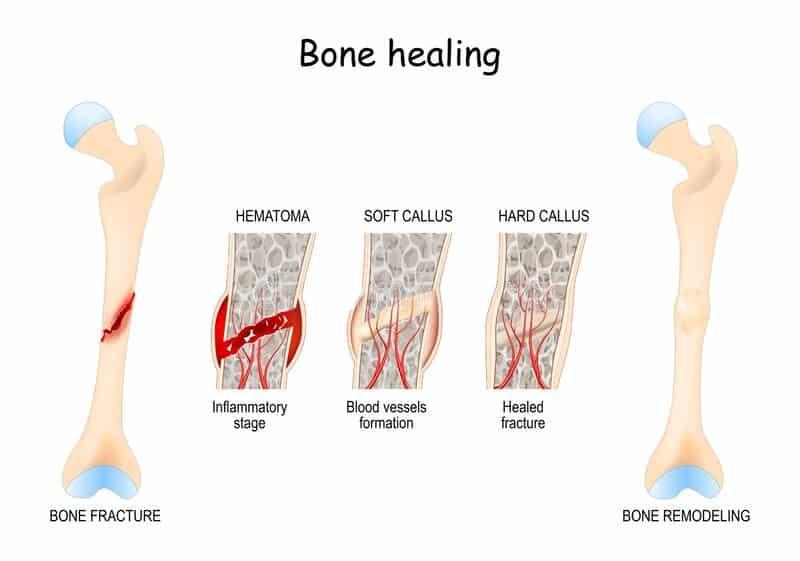 Factors affecting Fracture Healing