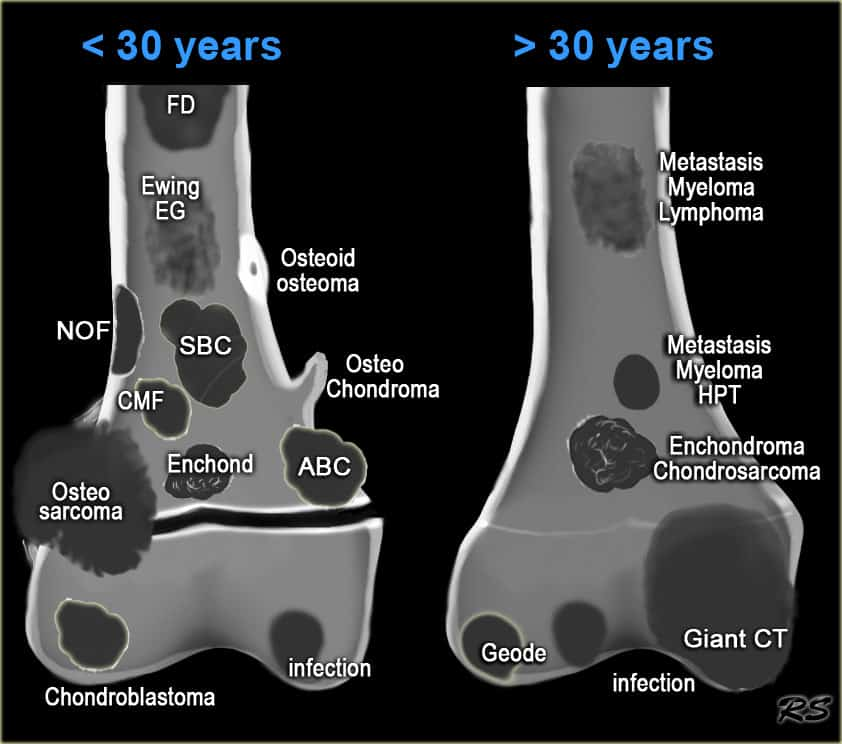 Differential Diagnosis for Bone Lesions