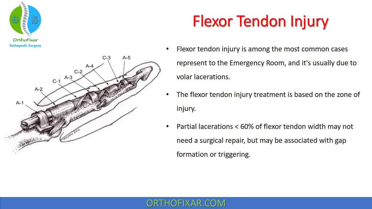 Flexor Tendon Injury of the Hand