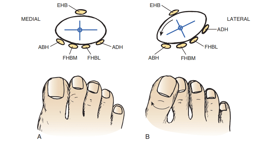 Anatomical Deformities in Hallux Valgus