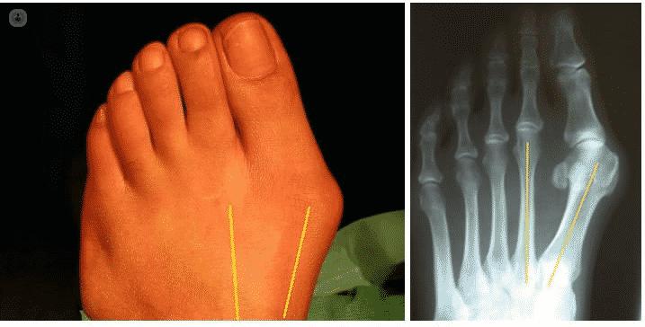 hallux valgus anatomical deformities