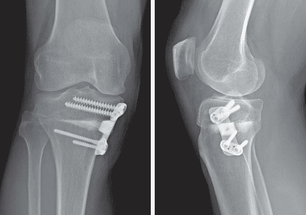 Indications and Contraindications for high tibial osteotomy