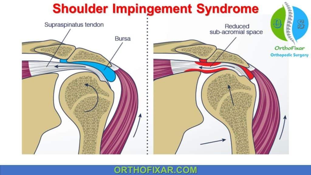 Rotator Cuff Impingement Syndrome