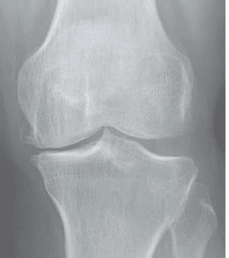 Anatomic sources of pain in osteoarthritis