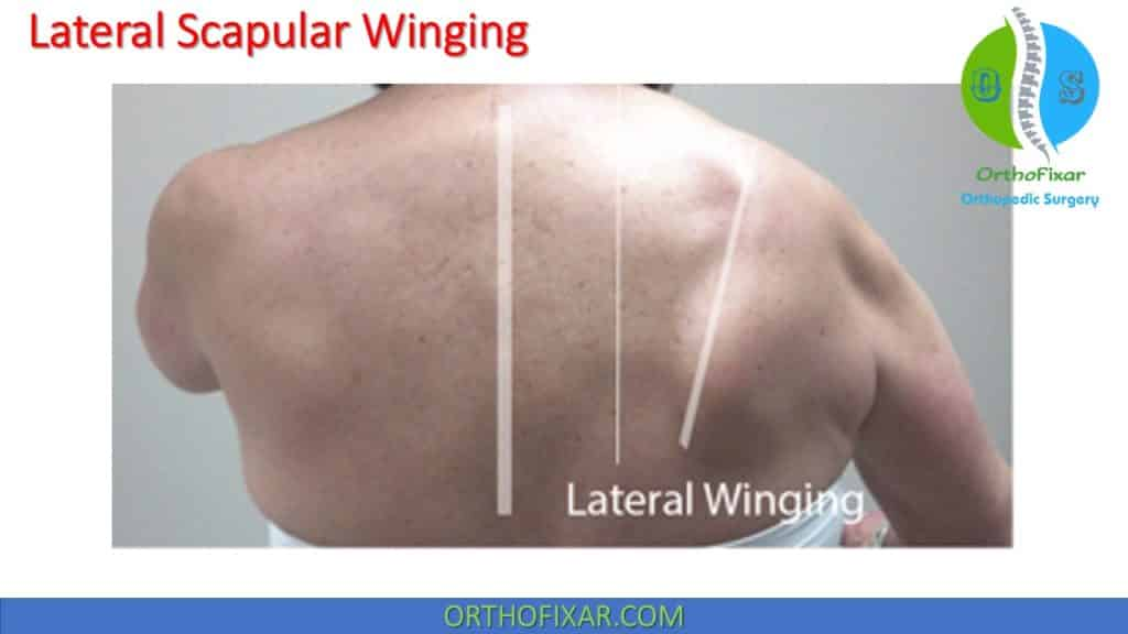 lateral Scapular Winging