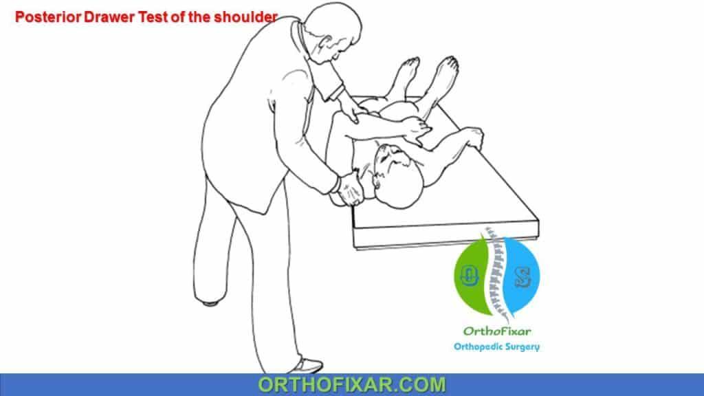 posterior drawer test shoulder