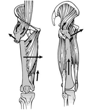 Subtrochanteric femur fracture's most common deformity after antegrade nailing